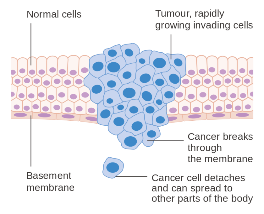 diagram_showing_a_malignant_tumour_cruk_069-svg