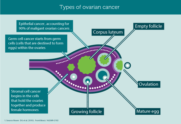 ovarian-cancer-tumor-types