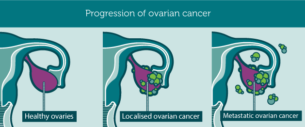 progression_ovariancancer1