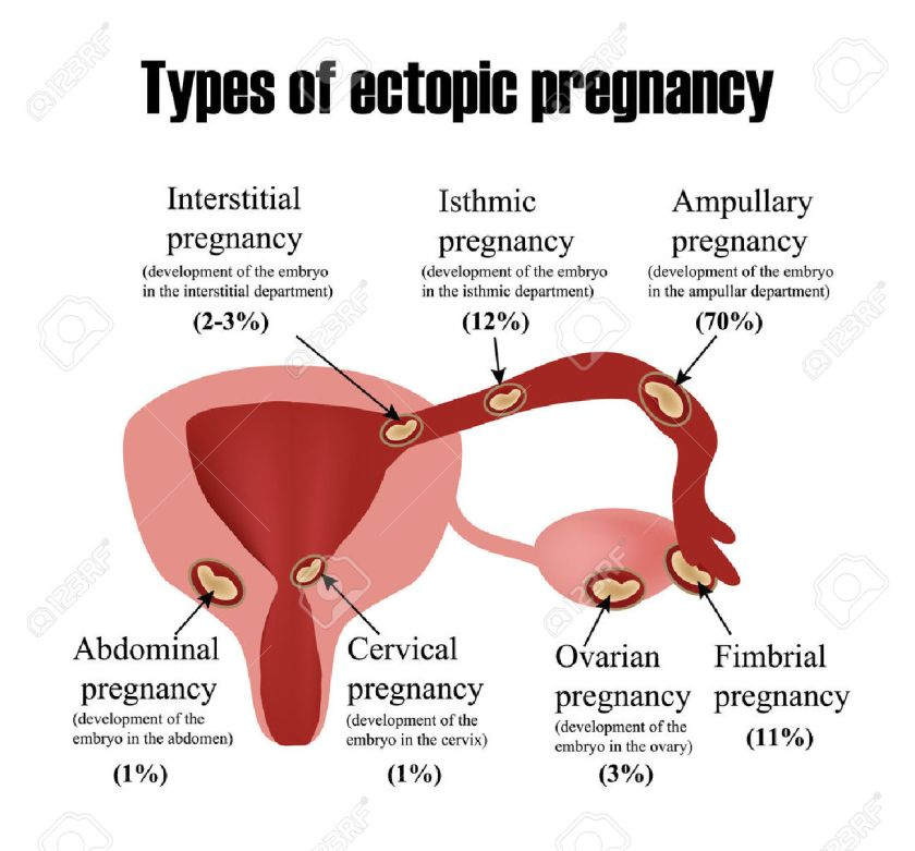 52407241-Types-of-ectopic-pregnancy-Infographics-illustration-on-isolated-background-Stock-Vector