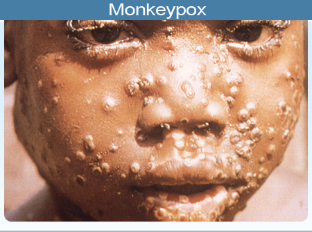 Monkeypox Outbreak